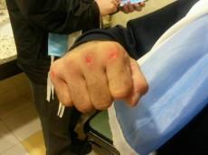 Lucas Matthysse Fist