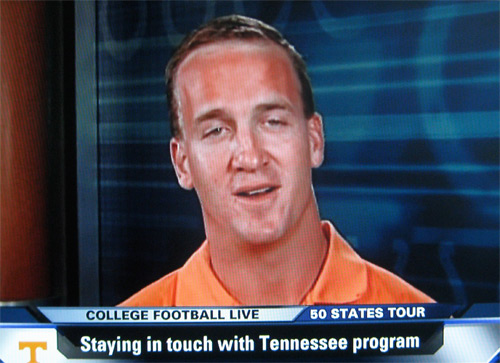 manning forehead