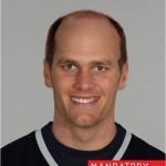 tom brady bald