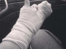 Kipnis Hand